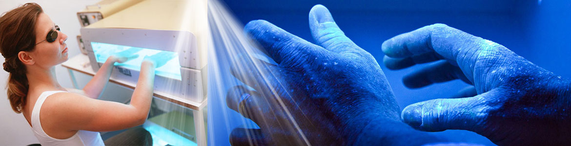 psoriasis and phototherapy