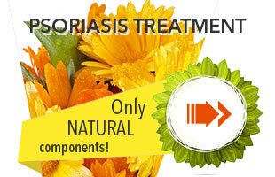 en_psoriasis_treatment_mob