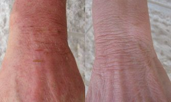 psoriasis on hands pictures