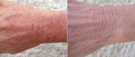 psoriasis on hands symptoms