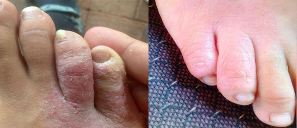 psoriasis on toes