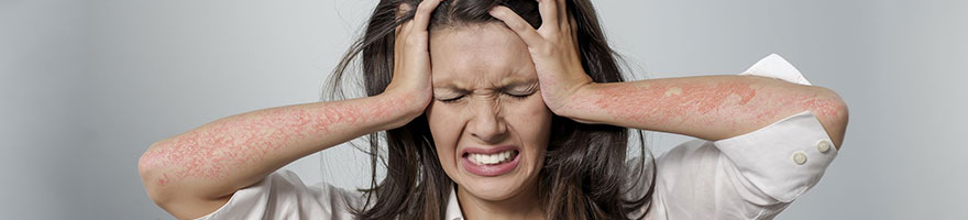 psoriasis_and_stress_article