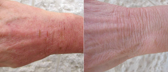 psoriasis main traitement naturel