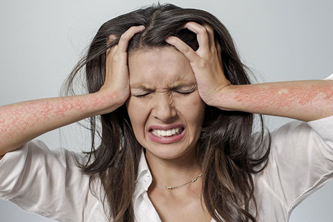 psoriasis_and_stress_mob_article